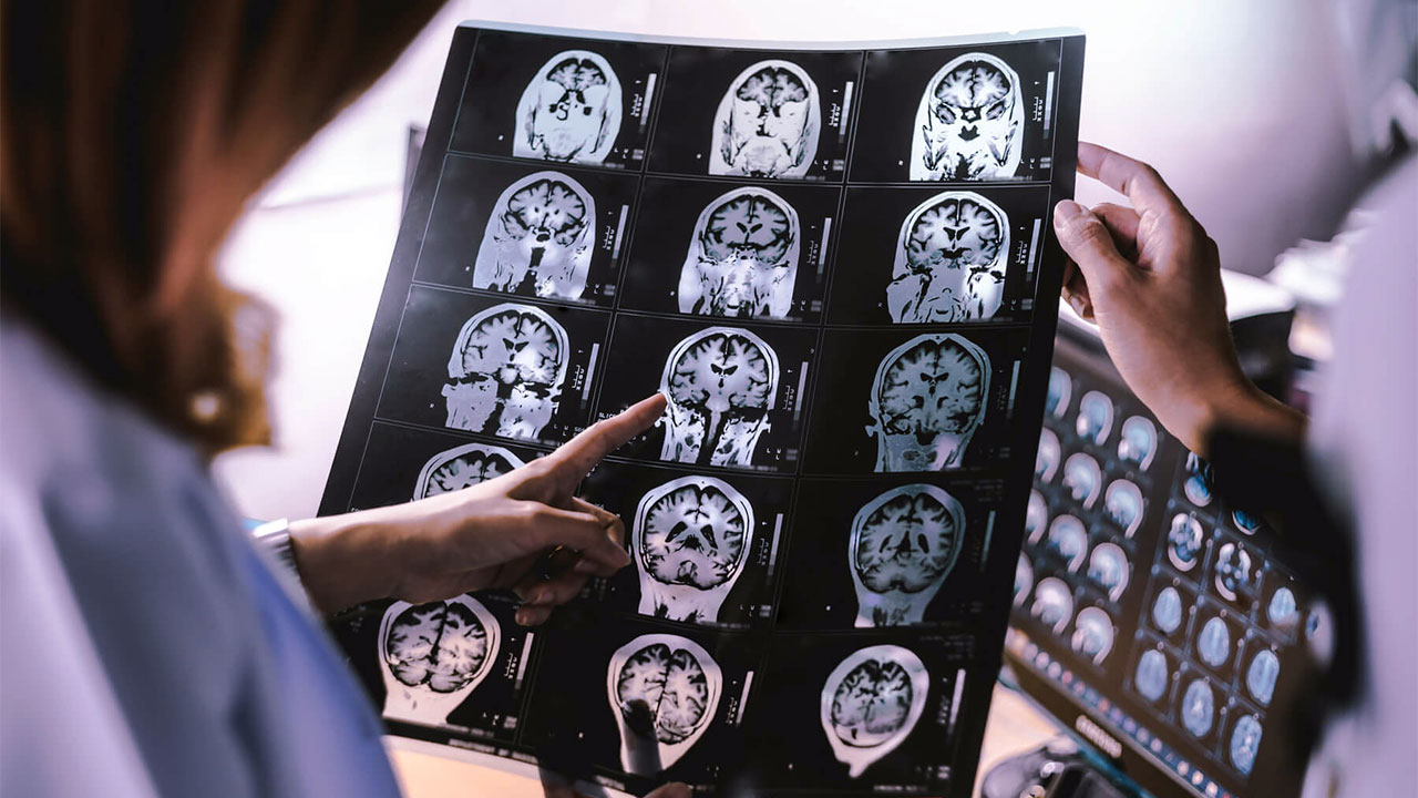 Tedaviye dirençli baş ağrıları bunama nedeni olabilir mi?