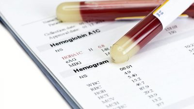 Hastalıkları Önlemek İçin En İyi 10 Kan Testi