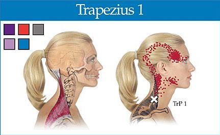 İleri Kafa Duruşu ve Boyun Ağrıları: Trapezius