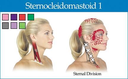 İleri Kafa Duruşu ve Boyun Ağrıları: Sternocleidomastoid