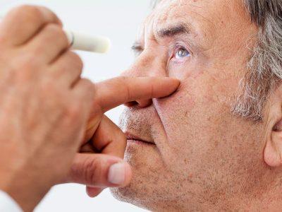 Basit bir göz muayenesi Parkinson hastalığını erken teşhis edebiliyor