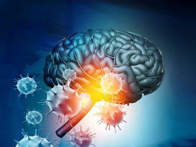 COVID-19 Doğrudan Beyin Hasarına Sebep Oluyor mu?