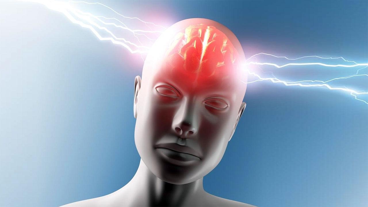 Hemiplejik Migren Nedir?