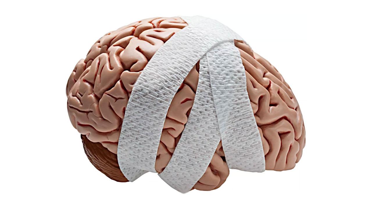 Travmatik Beyin Hasarı Çeşitleri