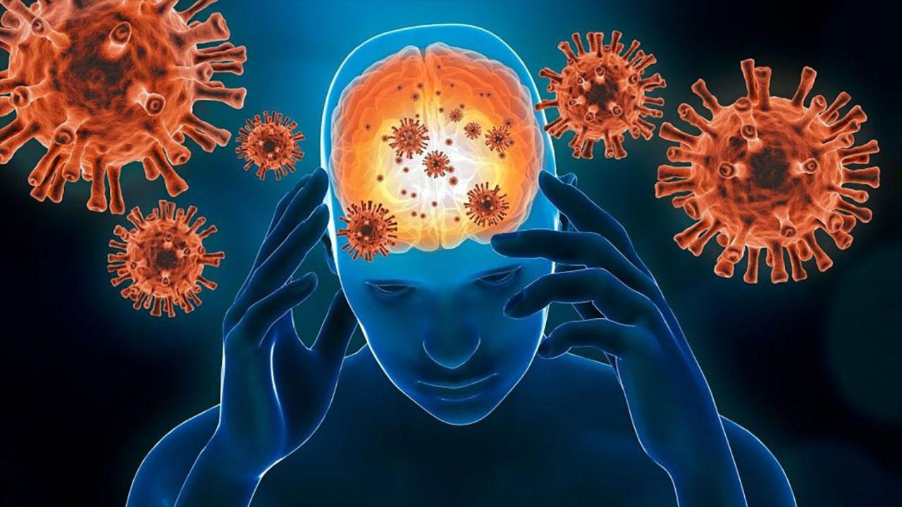 COVID-19 Sonrası Nörolojik Sendrom