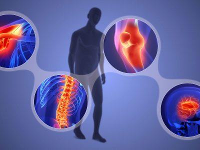Vücuttaki İnflamasyondan Kurtulmanın 6 Basit Yolu