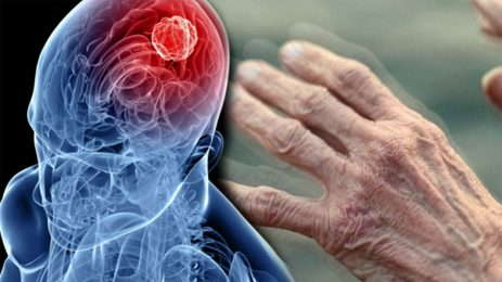 Parkinson, unutkanlık ve bilişsel değişimler